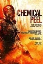 Chemical Peel ( 2014 )